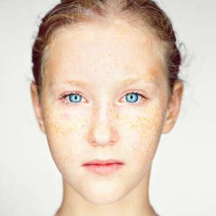 Kopfporträt eines Mädchens in Frontalansicht mit blauen Augen, bolden Haaren und Sommersprossen vor einem weißen Hintergrund